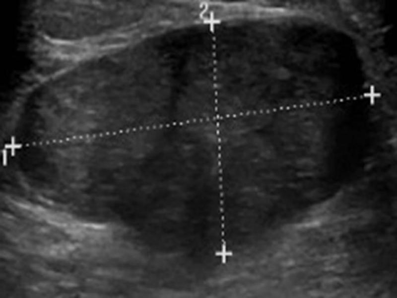 benign breast tumor
